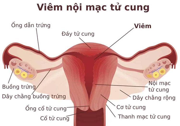 Coi chừng đau bụng kinh nhưng ra máu ít (kinh nguyệt ít)? 1
