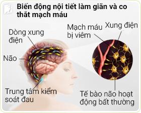 Nguyên nhân gây nhức đầu, đau đầu tuổi mãn kinh 2