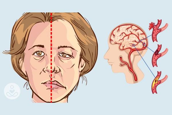 Tê liệt một bên mặt do biến chứng tai biến mạch máu não (Ảnh minh họa)