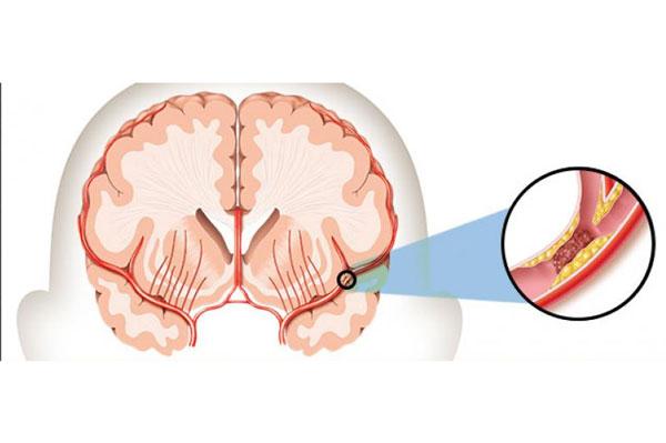 Tai biến mạch máu não là hiện tượng máu lưu thông đến não đột nhiên bị chặn lại (Ảnh minh họa)